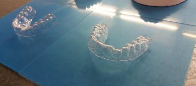 Broke College Student 3D Printed His Own Aligner