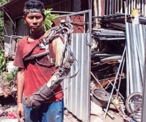 Indonesian Guy Bionic Limb