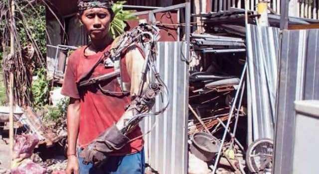 Indonesian Guy Bionic Limb