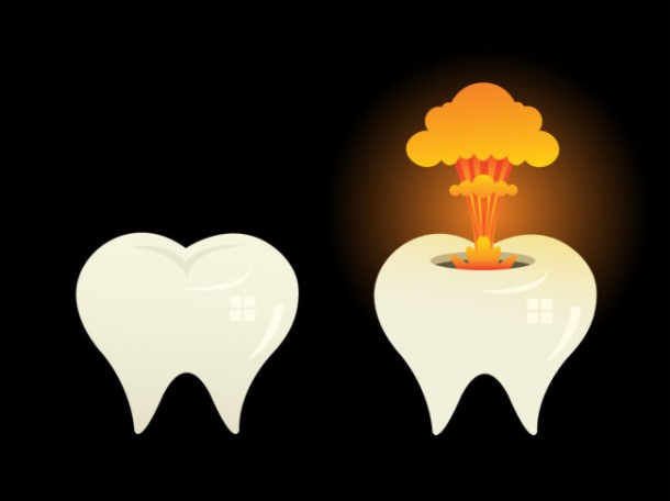 There Was A Dental Condition Where The Patient's Tooth Exploded 2