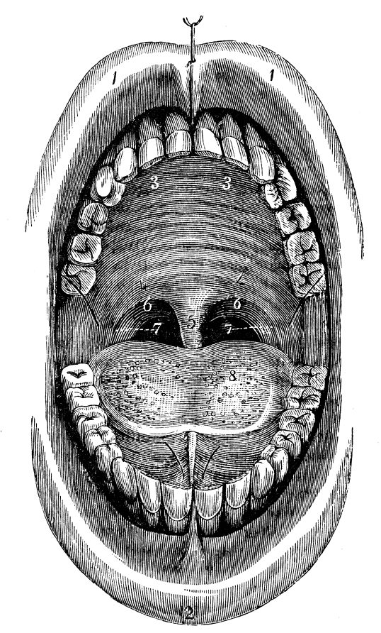 There Was A Dental Condition Where The Patient's Tooth Exploded 3