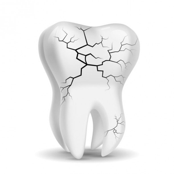 There Was A Dental Condition Where The Patient's Tooth Exploded