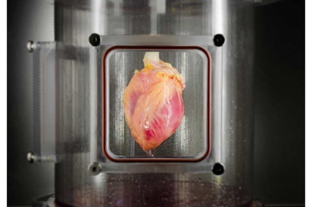 Stem Cells Used For Creating A Lab-Grown Beating Heart