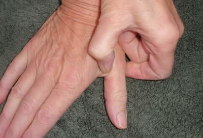 pressure points forefingers5