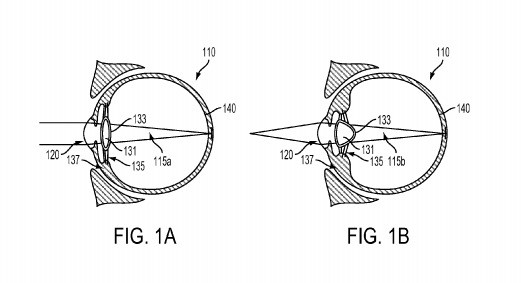 Google overtakes Sony's Smart Lens, Patents Smart Device injected into the eyeball_Image 1_Wonderful Engineering