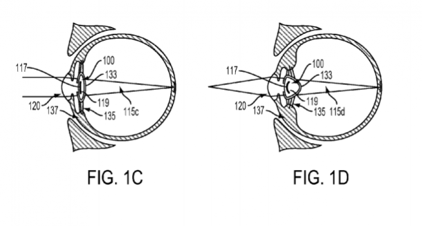 Google overtakes Sony's Smart Lens, Patents Smart Device injected into the eyeball_Image 2_Wonderful Engineering