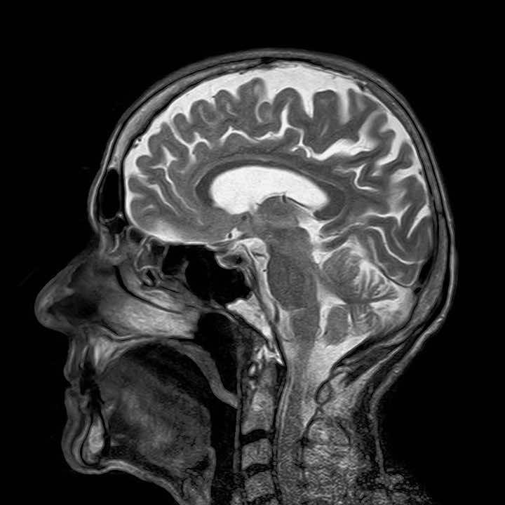 MRI dangerous2