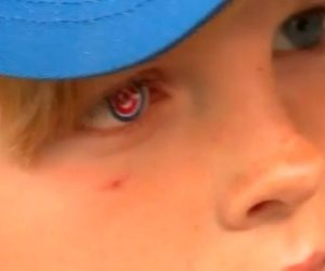 cancer survivor prosthetic eye