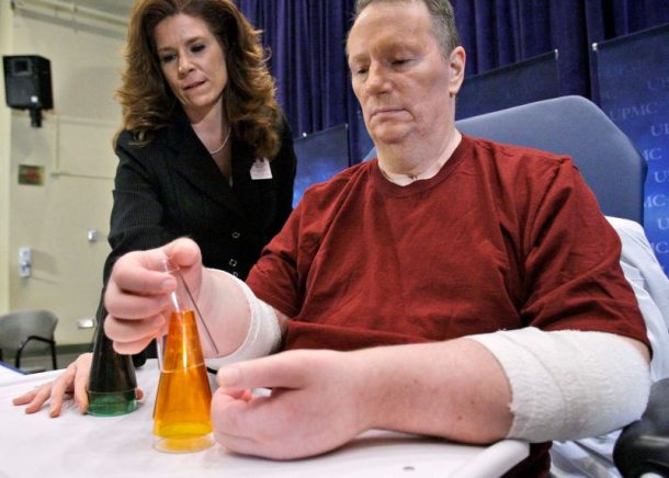First American to Receive Double Hand Transplant Reveals It Was Unsuccessful_Image 1