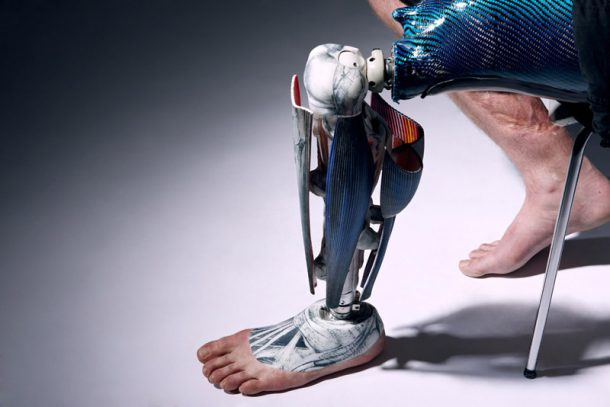 Spiked Leg and Gadget Arms Bring Art To Prosthetic Limbs_Image 4