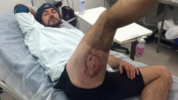 An iPhone Allegedly Exploded In His Pants And Left Third-Degree Burns On His Butt_Image 0