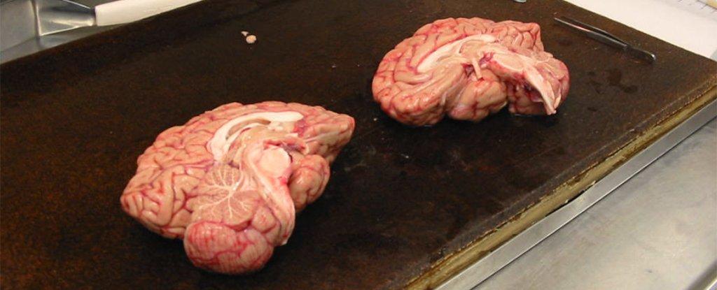 brain-bank-1_1024