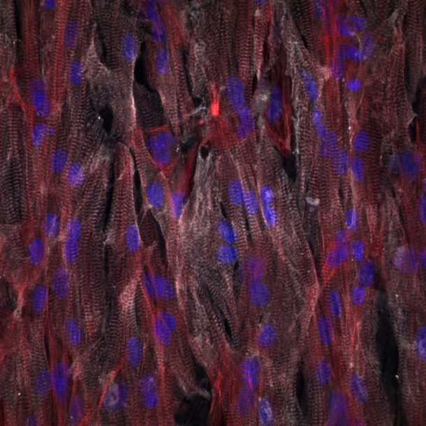 A close-up of the cardiac tissue on the chip(Credit: Johan Lind, Francesco S. Pasqualini, Disease Biophysics Group/Harvard University)