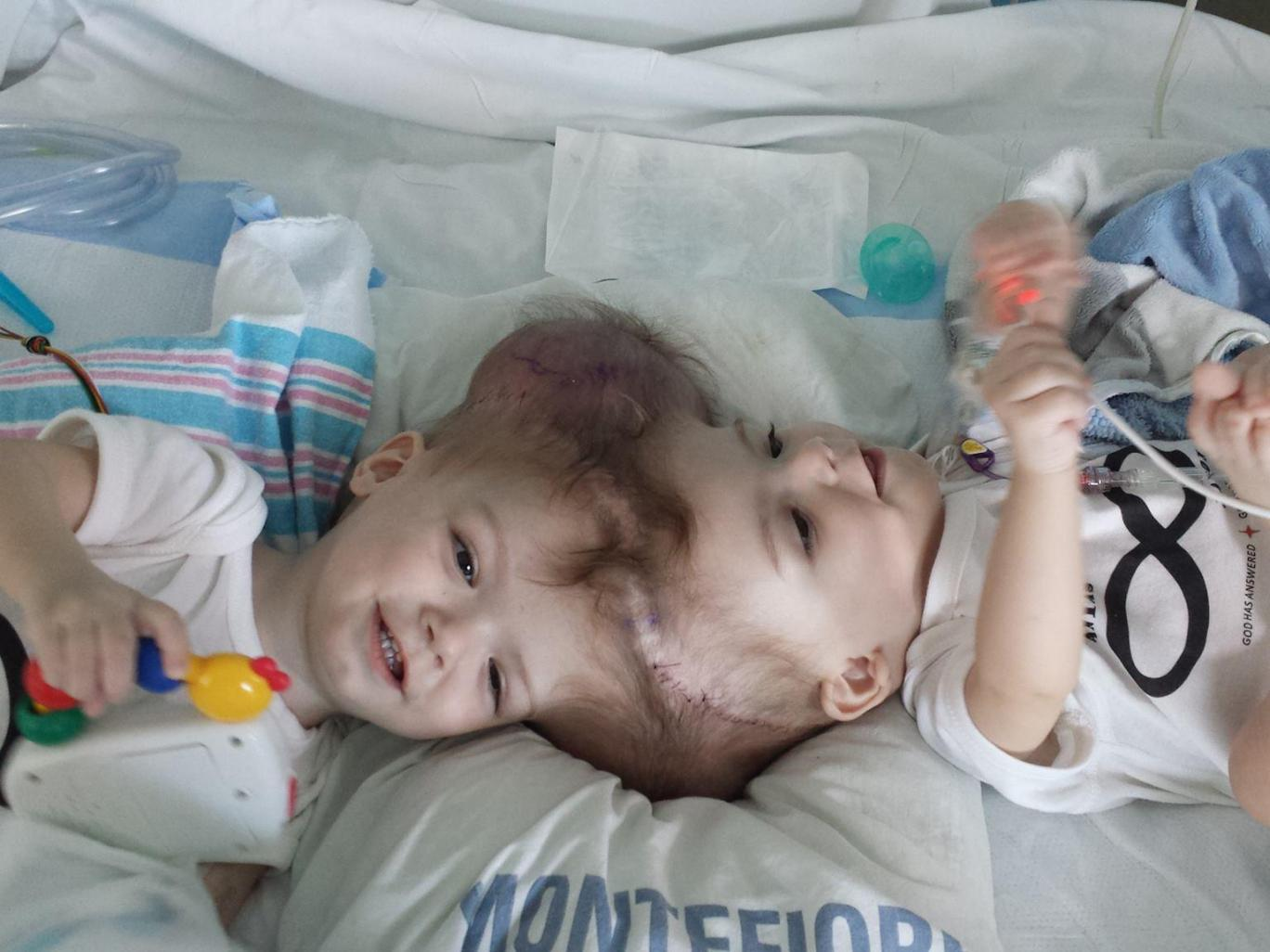American Surgeons Successfully Separate 13-Month-Old Twin Boys Conjoined At Head