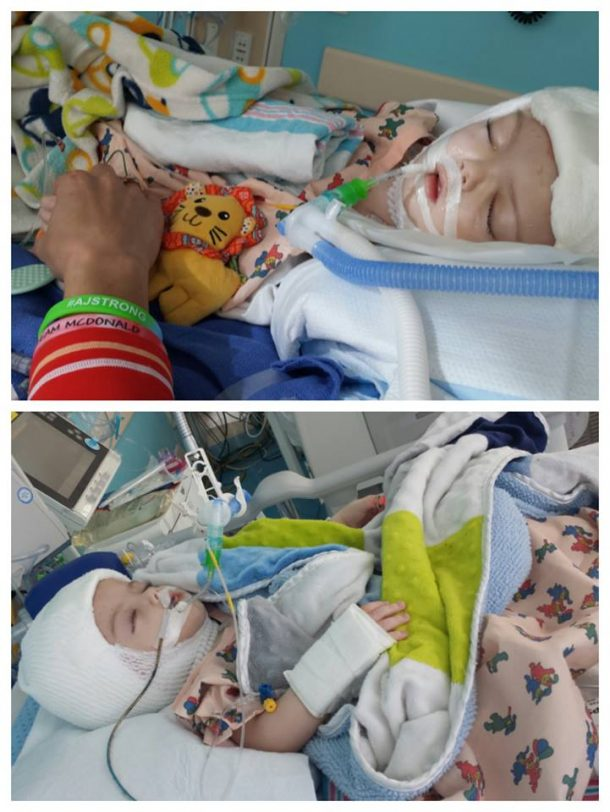 the-american-surgeons-successfully-separate-13-month-old-twin-boys-conjoined-at-head_image-1