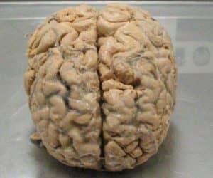 BrainMemory_web_1024