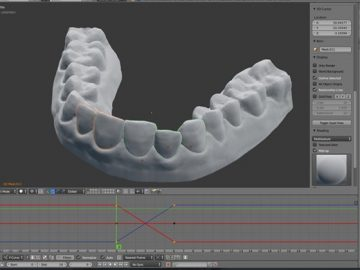 3D printed braces