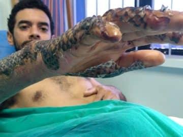 Tilapia skin for burn treatment