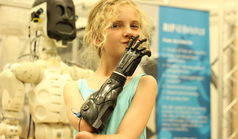 World's First Trial For 3D Printed Bionic Hands For Children Begins in UK
