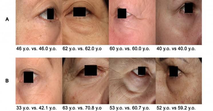 photoageclock biomarker age detector using eyes