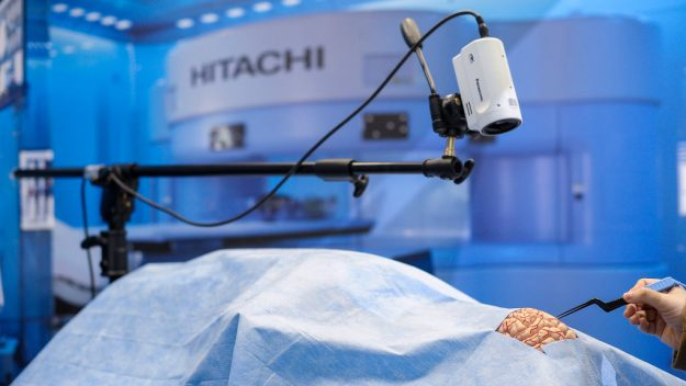 The First Ever 5G Remote Brain Surgery Happened In China!