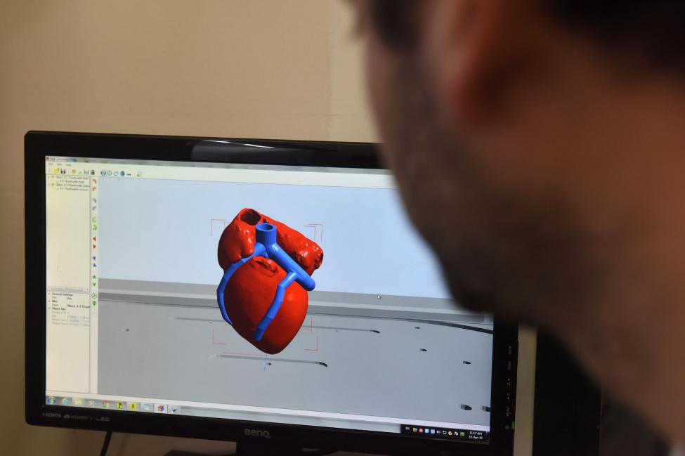 The Very First 3D-Printed Vascularized Heart Has Been Created!