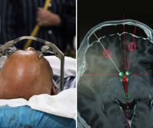 China Is Using Deep Brain Stimulation For Treating Drug Addicts