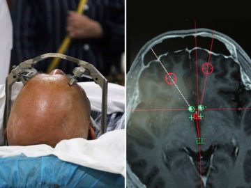 China Is Using Deep Brain Stimulation For Treating Drug Addicts