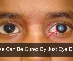These Eye Drops Can Treat Cataracts Without A Surgery