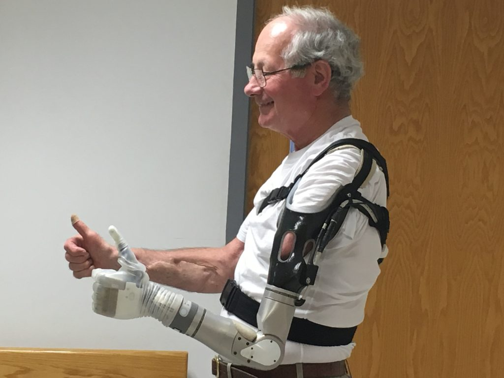 LUKE Arm Is A Prosthetic Arm That Can Sense & Touch!