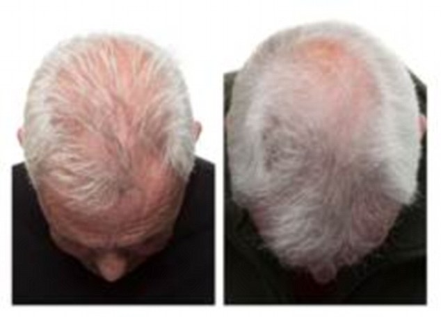 This Electric Hat Is Capable Of Doing Hair Regeneration – Goodbye Baldness
