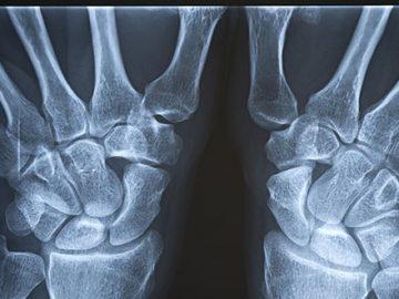 Researchers Have Healed Metal At Room-Temperature Similar To Bones