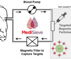 MediSieve Can Remove Diseases From The Blood Using Magnets