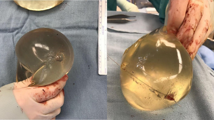 This Woman's Life Was Saved By Her Breast Implants After A Gunshot