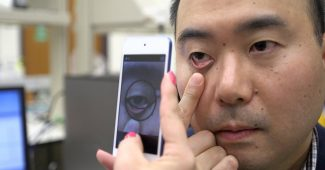 This App Can Detect Signs Of Anemia Using Your Smartphone