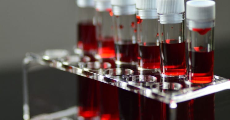Type O Blood Is The Least Likely To Get Affected By COVID-19